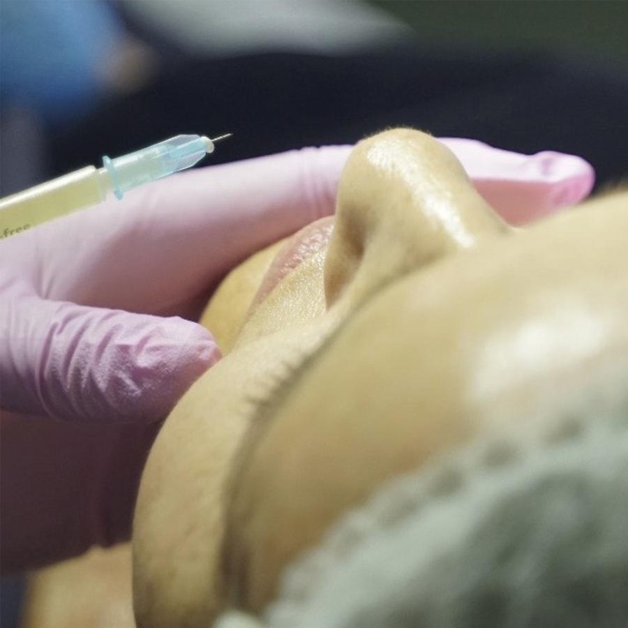 Exfoliación + Peeling + Mesoterapia