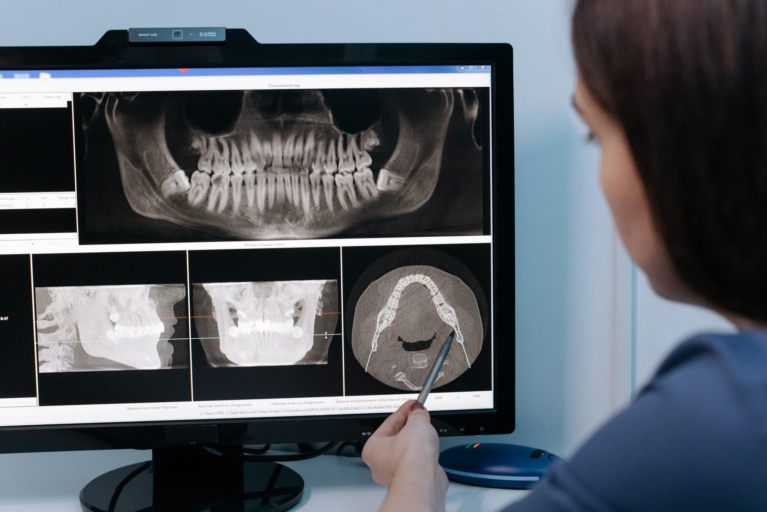 Radiografía dental en el Masnou